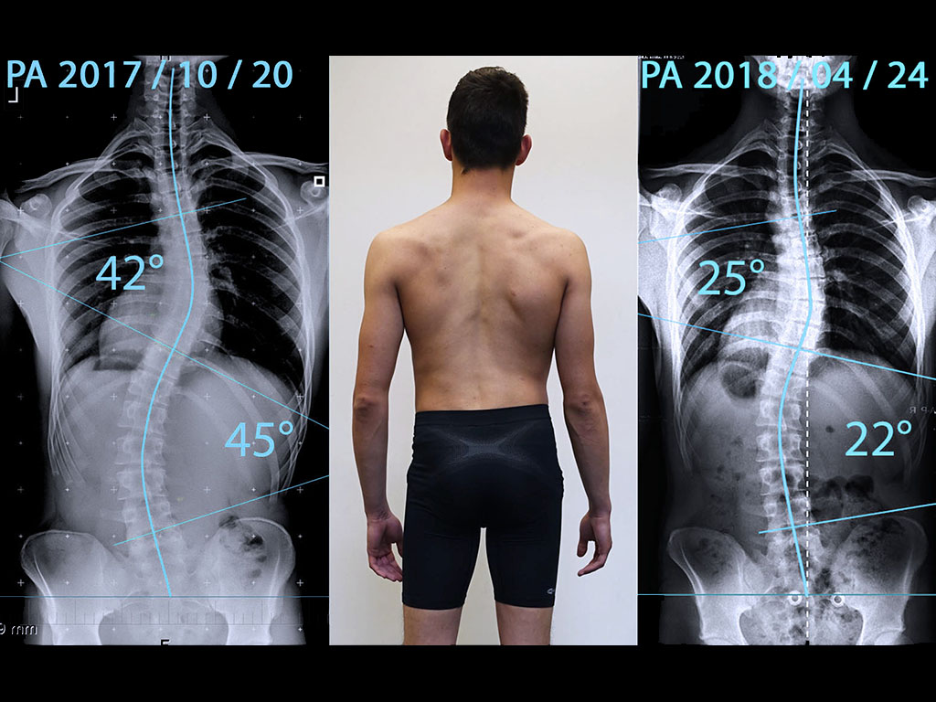 Skolioosi röntgen