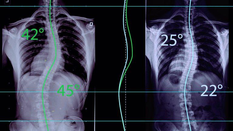 skolioosiklinikka skolioosi selkäranka